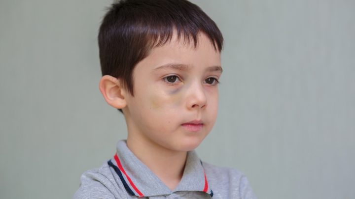 Bruised boy