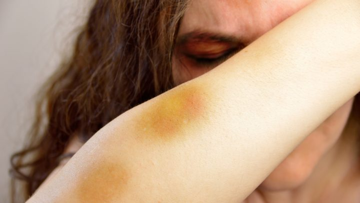 Woman covered in bruises