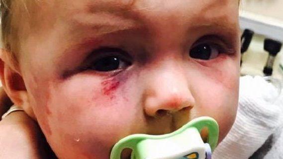 Injured baby toddler