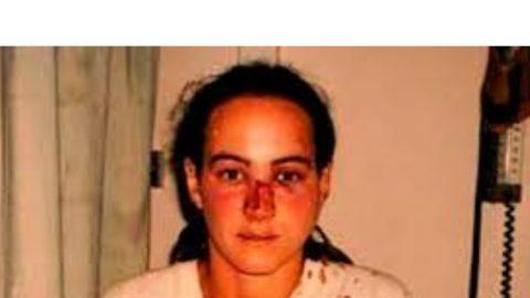 assault woman